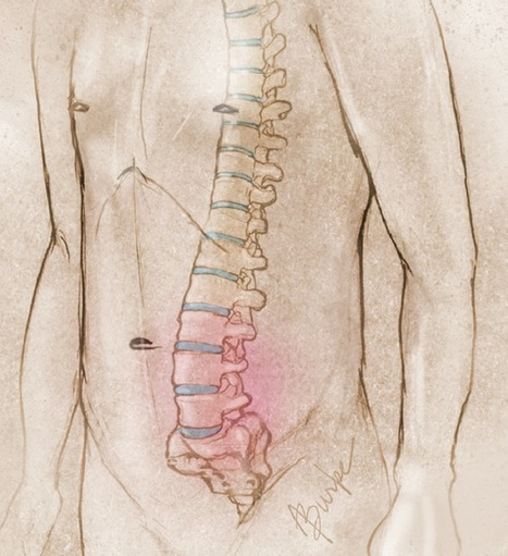 Mind-Body Program Helps Back Pain   Contemplative Neuroscience   Scoop.it