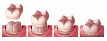Dentist Northridge CA | Winnetka Dental | Scoop.it
