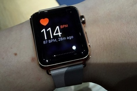 How my Apple Watch's heart rate monitoring saved my life   Physical and Mental Health - Exercise, Fitness and Activity   Scoop.it