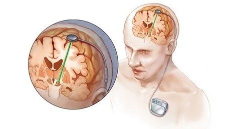Deep brain stimulation: The bleeding edge of neurohacking and transhumanism | ExtremeTech | leapmind | Scoop.it