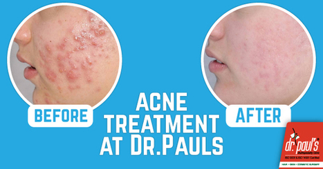 Acne Treatment at Dr.Paul's | Skin Care | Scoop.it
