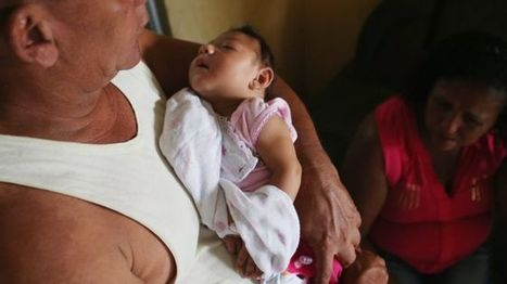 Zika-linked condition: WHO declares global emergency - BBC News   EconMatters   Scoop.it