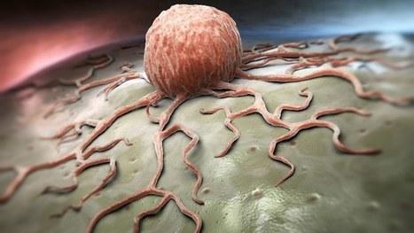Blocking key protein puts the brakes on leukaemia   Innovation from chemistry   Scoop.it