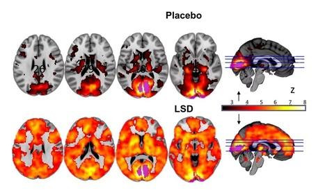 Forscher visualisieren erstmals Auswirkungen eines LSD-Trips mit Gehirnscans | weekly innovations | Scoop.it