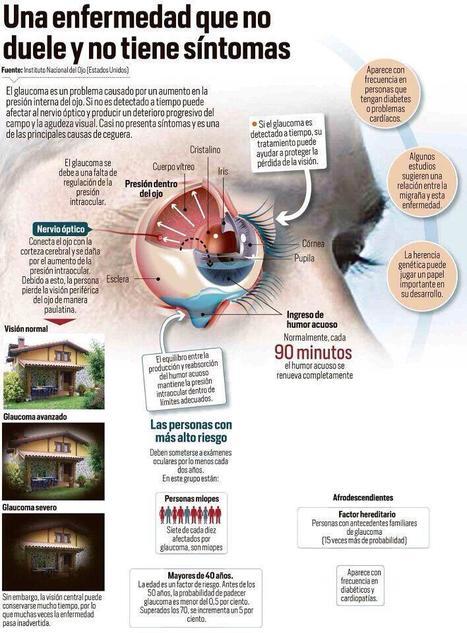 Glaucoma.  Una enfermedad que no duele y no tiene síntomas | OPTICA EL TEMPLE | Scoop.it