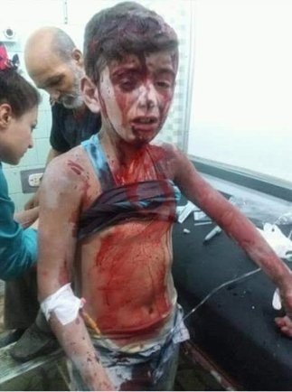 """M of A - The """"Wounded Boy In Orange Seat"""" - Another Staged """"White Helmets"""" Stunt 