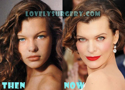 Milla Jovovich Plastic Surgery Before After, Fact or Rumor? | Celebrity Plastic Surgery | Scoop.it