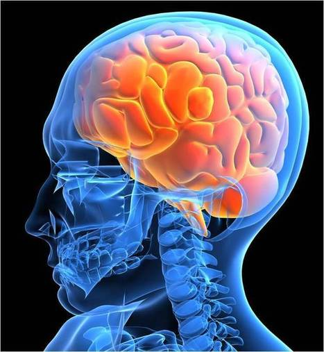 Caring for a Stroke Patient - Modern Health Talk | Active Global Specialised Caregiver | Scoop.it