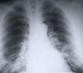 Smoking Raises Asbestos Workers' Cancer Risk, Study Says: MedlinePlus | onconnect | Scoop.it