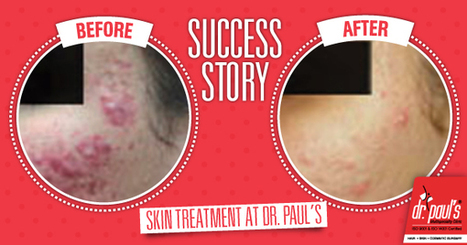ACNE-SUCCESS STORY | Skin Care | Scoop.it