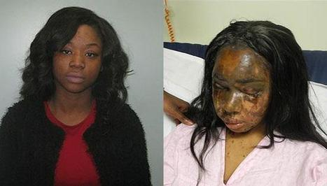 Mary Konye guilty of devastating acid attack on friend who called her 'ugly' | crime | Scoop.it