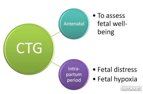 Fastbleep: CTG Interpretation | Reproductive Medicine | Scoop.it