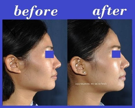 Jaw Reduction Photos Thailand | Bangkok Aesthetic Surgery Center | The Best Plastic Surgery Clinic In Thailand | Scoop.it