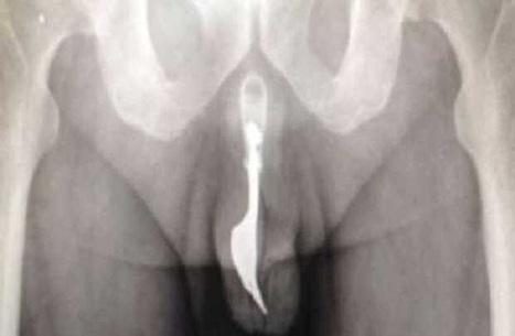 70enne operato d'urgenza: aveva una forchetta nel pene   Il Vizietto Torrevecchia   Scoop.it