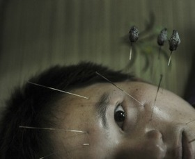 Biological Implausibility Aside, Acupuncture Works | IVF and Acupuncture | Scoop.it