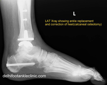 Ankle Replacement in India | Health | Scoop.it