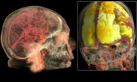 'It's a brain symphony': First 'heat map' video of female orgasm shows how blood floods EVERY region of the brain | Brain Methods and Others | Scoop.it
