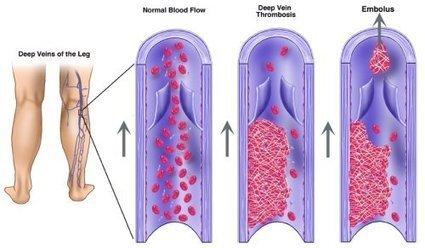 Je hart en je vaten | Voeding en het effect op hart en bloedvaten | Scoop.it