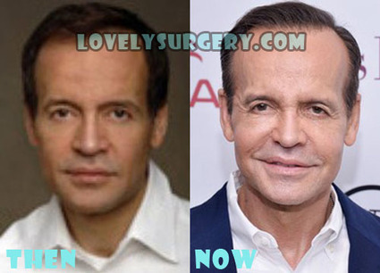 Louis Licari Plastic Surgery Before and After Photos | Celebrity Plastic Surgery | Scoop.it