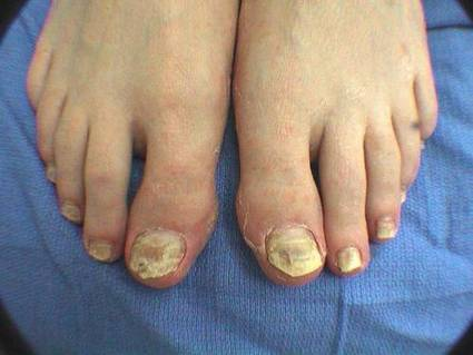 Both Natural Treatment And Surgical Treatment Are Available For Feet Infection | Nail Fungus Treatment | Scoop.it