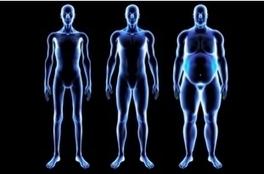 L'OBÉSITÉ, reconnue comme facteur majeur de risque de cancer   Anatomie   Scoop.it
