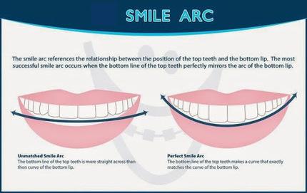 Smile Arc for Perfect #Smile !!<br/>#toothandtravel #orthodontics #braces&hellip; | DENTAL TOURISM | Scoop.it