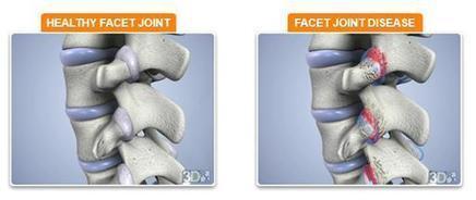 Facet Joint Pain Treatment in Tulsa | samedayspinesurgery | Scoop.it