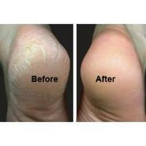 Calluses Treatment | Foot Callus Treatment | Callus Removal Treatment | Scoop.it