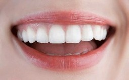 How to Get Rid Of Gingivitis Fast - HealthyHobbit | Naturally Healthy | Scoop.it
