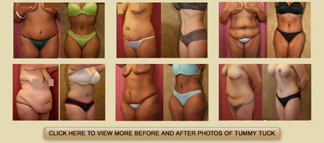 Experience a unique transition with Abdominoplasty procedure! | tummy tuck | Scoop.it