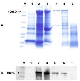 The Intracellular Citrus Huanglongbing Bacterium, 'Candidatus Liberibacter asiaticus' Encodes Two Novel Autotransporters | Potato | Scoop.it