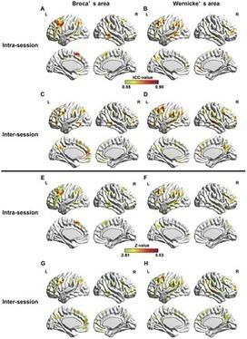 PLOS ONE: Temporal Reliability and Lateralization of the Resting-State Language Network | Brain and Management | Scoop.it