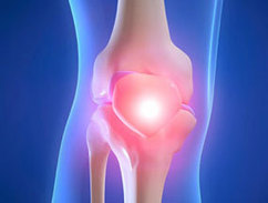 Obesity Explains More Rapid Growth Rate of Knee Replacement - HCPLive   Total Hip Replacement Surgery Cost in India   Scoop.it