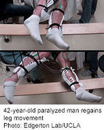 Noninvasive Stimulation Gets Legs Moving After Spinal Cord Injury | Spinal Injuries and Paralysis News and Information | Scoop.it