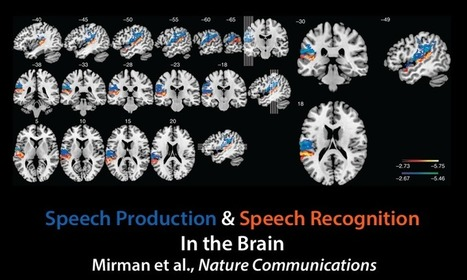 Mapping language in the brain - Medical Xpress | Otherwise able | Scoop.it
