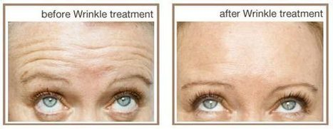 Anti Ageing Cosmetic Clinic in Sydney   facialrejuvenation   Scoop.it