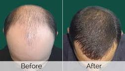 The Latest Treatments for Hair Loss | Hair Transplant Dubai | Scoop.it