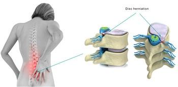 Chiropractic vs. Injections for Disc Herniation | Chiropractic + Wellness | Scoop.it