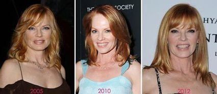Marg Helgenberger Plastic Surgery Before & After Photos | Celebrity Plastic Surgery | Scoop.it