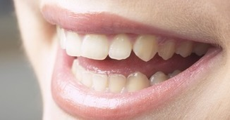 Necessary Things to Know About Dental Crowns Melbourne | All Dental Solutions in Melbourne | Smile Creation Dental Clinic | Scoop.it