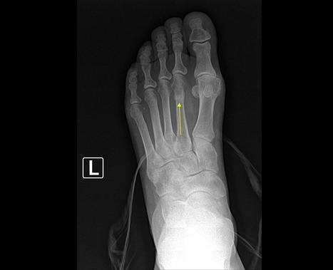 Stress Fractures of the Foot... Let's Discuss the Facts | active physiotherapy | Scoop.it