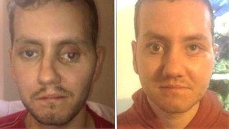 Pioneering 3D printing reshapes patient's face in Wales   ICTHealth   Scoop.it