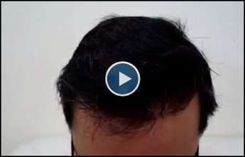 Hair Transplant Clinic in India, Hair transplant in Delhi | Top Tips For Bartending | Scoop.it
