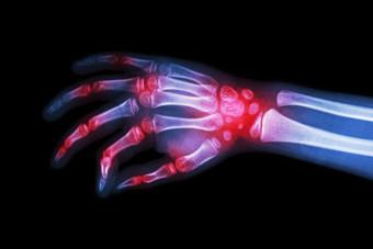 7 Health Problems that Mimic Lyme Disease | Alpha-Gal | Scoop.it