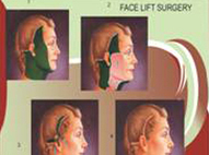 Cosmetic Surgery Clinic in Delhi, Face Lift Surgery | Medical Centre | Scoop.it