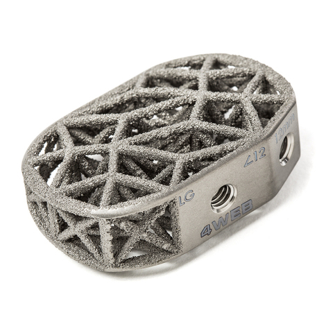 4WEB Medical: Over 3,000 of their 3D printed spine truss implants in use | 3D Printing and Fabbing | Scoop.it