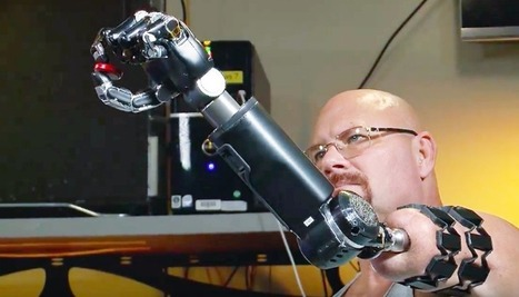 Hangout with Johnny Matheny: World's First Osseointegrated, Neurally Controlled Prosthetic     Accelerating technology   Scoop.it