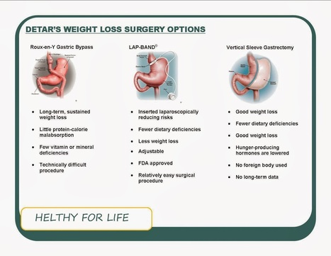 Weight Loss Surgery Options - What Is Best for You? | HEALTHY FOR LIFE | HEALTHY FOR LIFE | Scoop.it