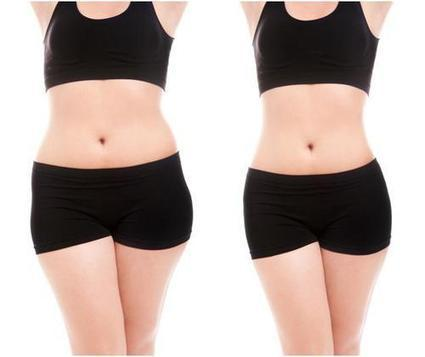 Laser Lipo: Get the Weight Loss without the Sagging Skin | Ideal Face and Body | Scoop.it