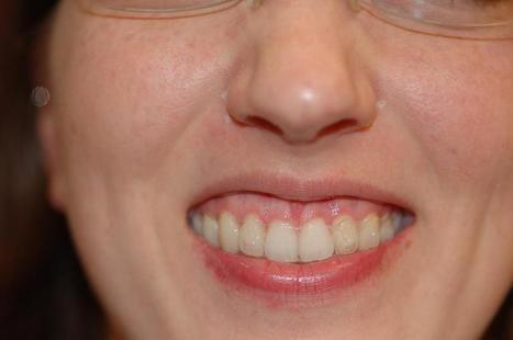 Gummy Smile Correction at Affordable Cost , Hyderabad | Best Dental Hospital Chanda Nagar | Scoop.it